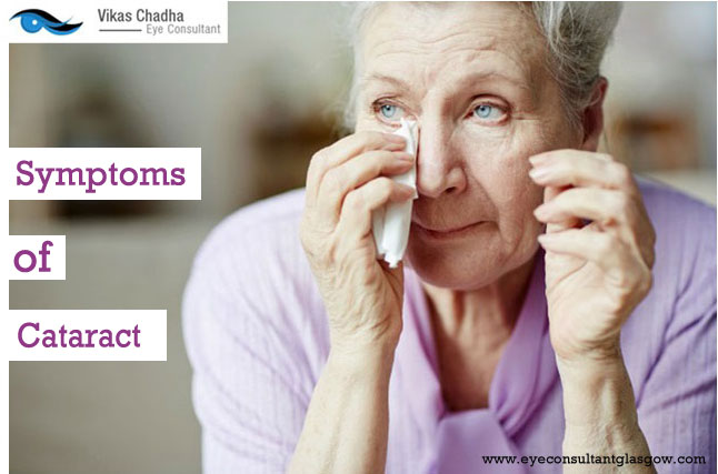 Cataracts Surgery : – Types, Symptoms, Process & Important Facts